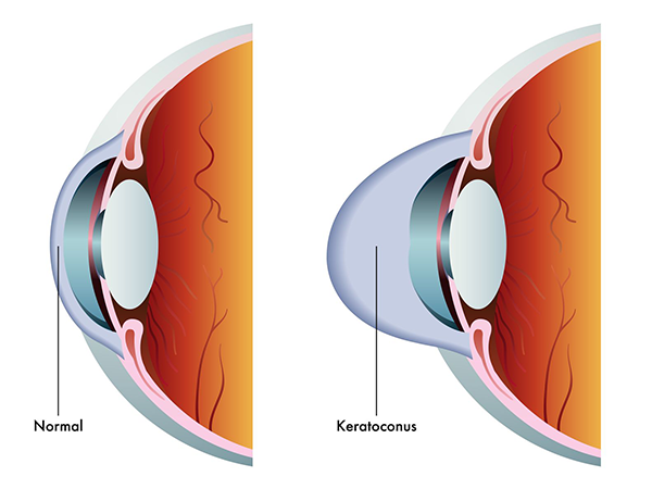 Keratoconus Treatment Jackson