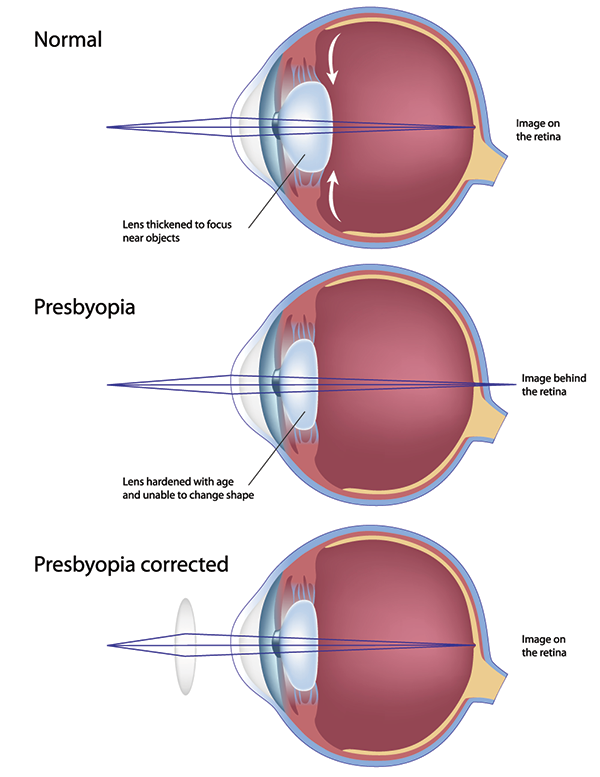 presbyopia treatment Jackson